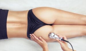 Radiofrequenz, Haut straffen, Cellulite Behandlung in Heidelberg, abnehmen hilfe