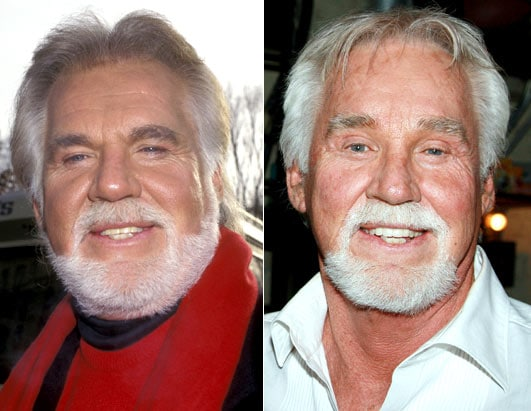 Did Kenny Rogers ever have plastic surgery in his life?