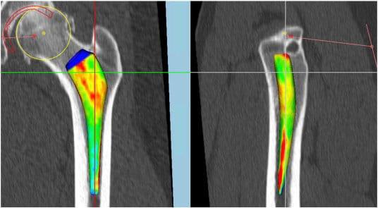 Prothèse de hanche sur mesure