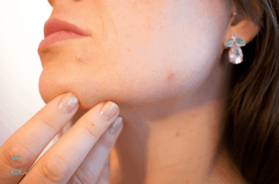 woman looking at acne on her face and chin