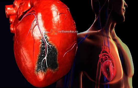 Фото-Больное сердце