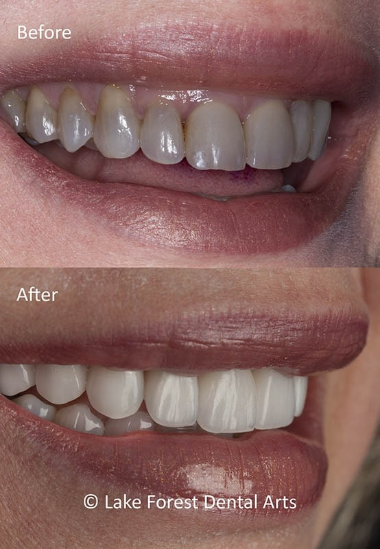 Dark teeth fixed before and after