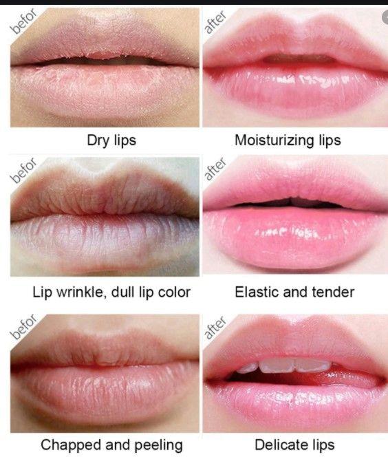 Castor Oil for Lips