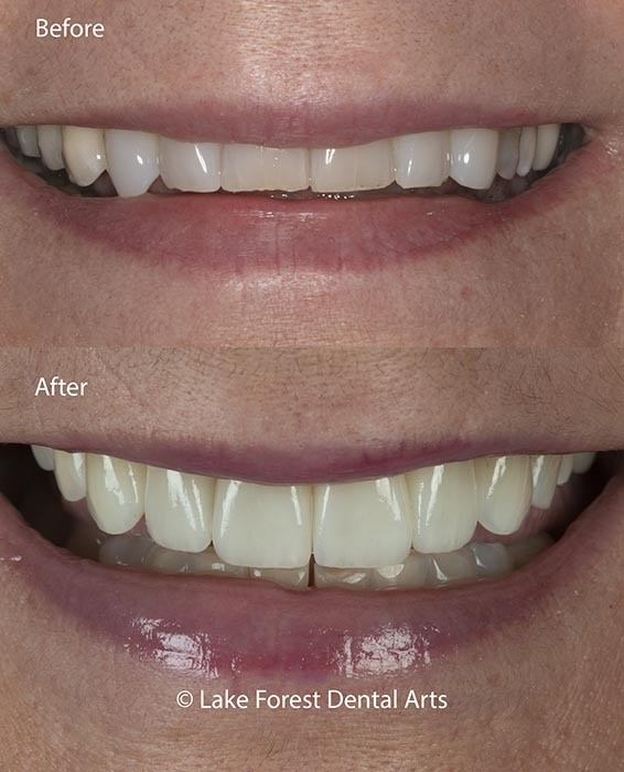 Cosmetic Dentistry when you Have Bruxism