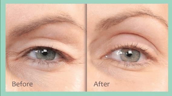 non-surgical eyebrow lift in Edmonton