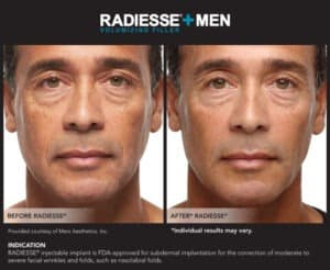 Images for Before and After Pictures of Men- Radiesse End Results- Gemini Plastic Surgery in Rancho Cucamonga, California