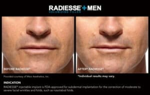 Before and After Gallery for Men- Radiesse End Results- Gemini Plastic Surgery in Rancho Cucamonga, California
