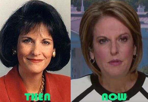 celeb plasticsurgery 03600533a0dc18ed13c063f736c09fe7 20201203 Gloria Borger before and after Plastic Surgery November 13, 2020