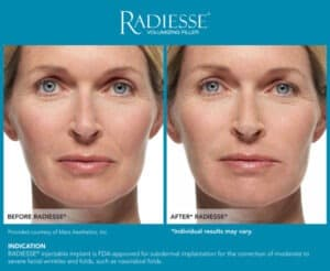 Images for Before and After Galleries- Radiesse Jawline- Gemini Plastic Surgery in Rancho Cucamonga, California