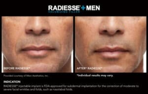 Before and After Photos for Men- Radiesse Results- Gemini Plastic Surgery in Rancho Cucamonga, California