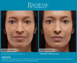 Images for Before and After Photos- Radiesse Eyes- Gemini Plastic Surgery in Rancho Cucamonga, California