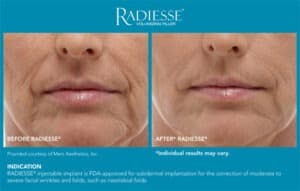 Before and After Gallery- Radiesse End Results- Gemini Plastic Surgery in Rancho Cucamonga, California