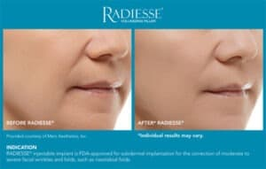 Before and After Photos- Radiesse Results- Gemini Plastic Surgery in Rancho Cucamonga, California