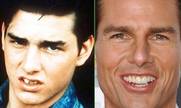 What you know about Tom Cruise plastic surgery