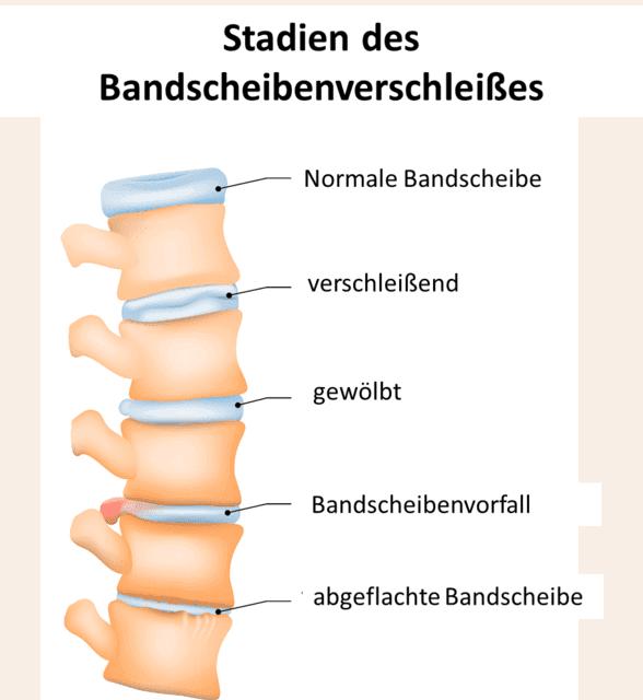Durch Überlastung des Rückens und somit der Bandscheiben findet ein Verschleißprozess statt der bis zu einer Osteochondrose führt.
