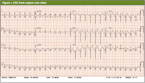 ECG From Urgent Care Clinic of someone that presented.  Atypical Presentation of Thyroid Storm