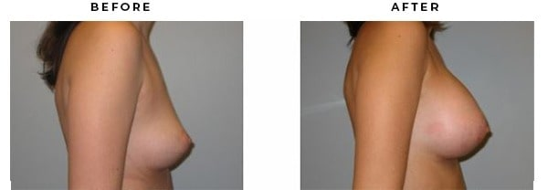 Before & After Plastic Surgeon Photos - Case Study 2143 - Gemini Plastic Surgery - Riverside County