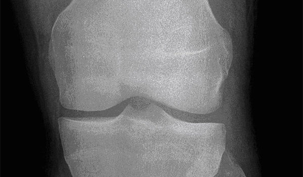 17-year-old boy experiencing pain from injured knee