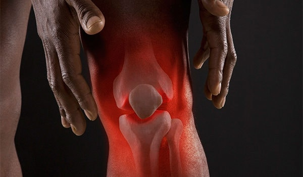 Evaluation of Knee Pain: An Urgent Care Approach