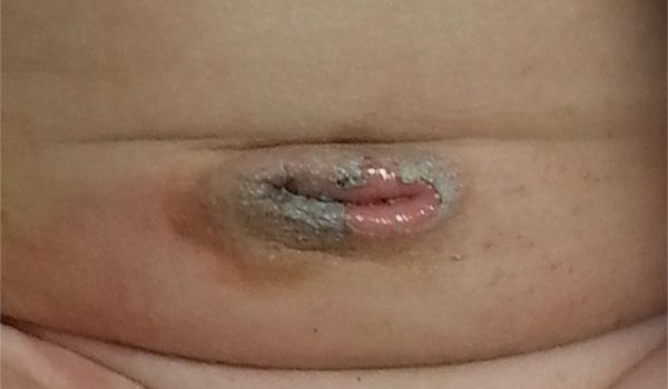 """5-week-old male with skin peeling around the """"belly button"""""""