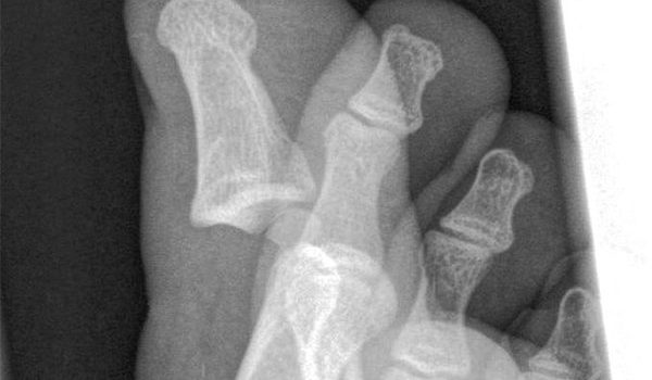 9-year-old female suffering after a blow to her right hand