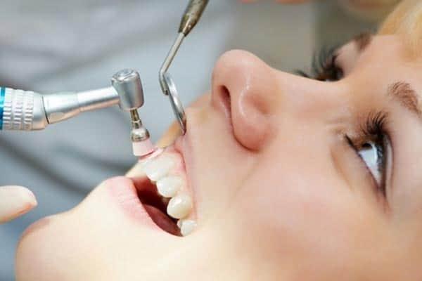 Zoom Laser Teeth Whitening
