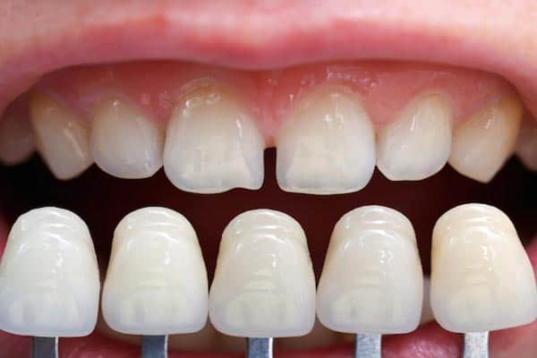Dental Veneers Dublin