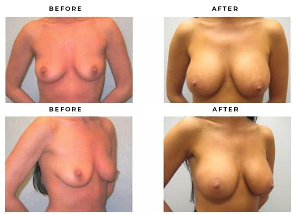 Breast Reduction Before & After Photos · Gemini Plastic Surgery · Dr Della Bennett · Top Plastic Surgeon
