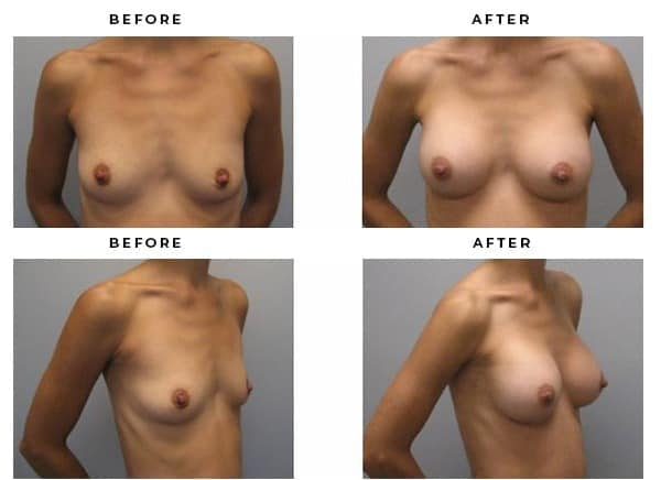 Breast Implant Before and After Photo Galleries - Gemini Plastic Surgery - Dr Della Bennett - San Bernadino, California