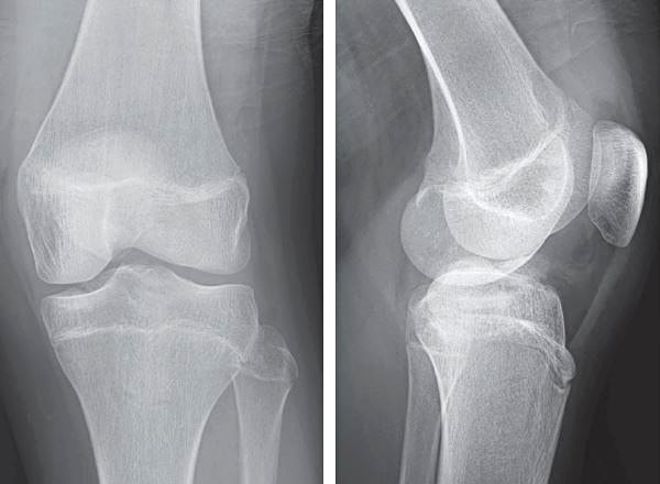 13 year old boy's x-ray image presenting with knee pain after a fall  initial image