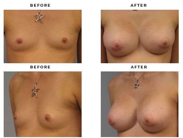 Breast Implants Before & After Photos by Gemini Plastic Surgery, Dr Della Bennett, MD - Case Study 3064