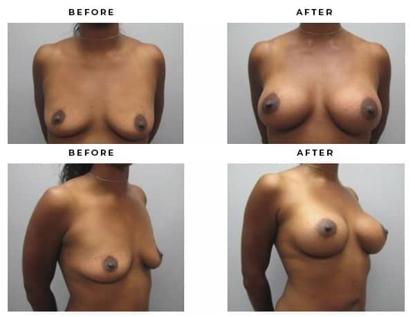 Boob Job Before & After Photos. Gemini Plastic Surgery | Chino Hills, California