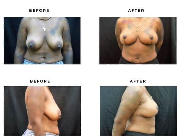 Before & After Images- Breast Lift Surgery. View Scars and End Results - Chief of Plastic Surgery- Dr. Della Bennett, MD. of Gemini Plastic Surgery - Best Breast Lift Surgery- Top Board Certified Plastic Surgeon in in Los Angeles, Orange County, Inland Empire & San Bernadino. Study #4840