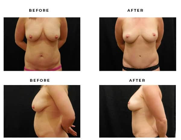 Before & After Photos- Mommy Makeover-Breast Lift & Tummy Tuck- Dr. Della Bennett, MD. of Gemini Plastic Surgery in Los Angeles, Orange County, Inland Empire & San Bernadino. Case Study #4683