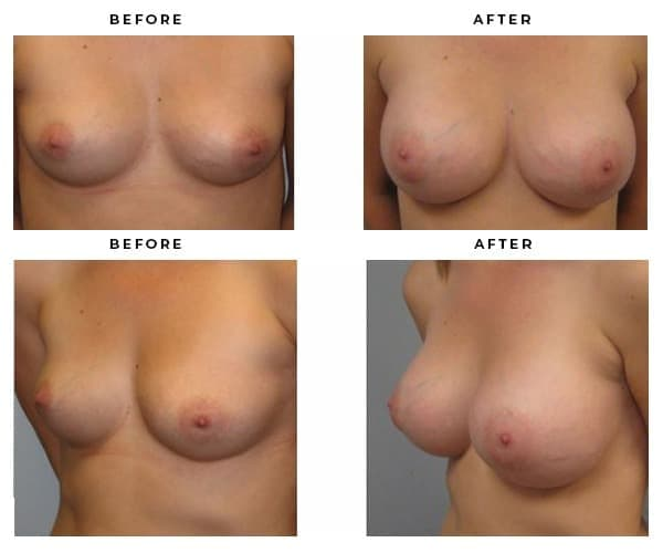 Before & After Breast Augmentation Photos from Top Plastic Surgeon Dr. Della Bennett in Los Angeles, California