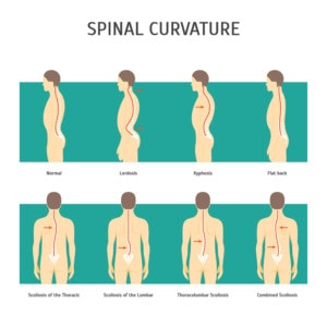 Curvature of the spine infographic