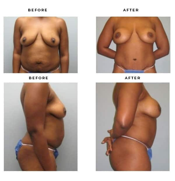 Before & After Pics- Mommy Makeover-Breast Augmentation, Tummy Tuck, Abdominoplasty- Dr. Della Bennett, MD. of Gemini Plastic Surgery in Rancho Cucamonga. Case Study #2277