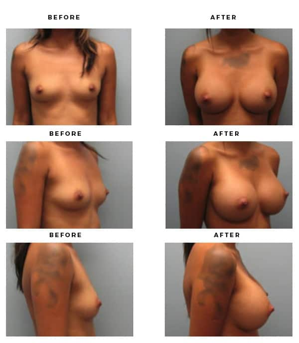 Before & After Images- Breast Augmentation - Dr. Della Bennett, MD. of Gemini Plastic Surgery in Rancho Cucamonga. Best Board Certified Plastic Surgeon near me. Case Study #4171