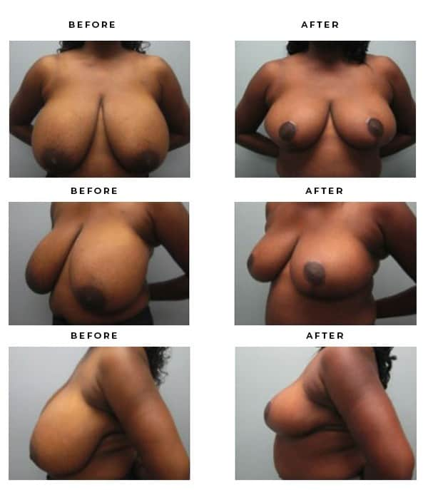 Before & After Images- Breast Reduction Scars and Results - Chief of Plastic Surgery- Dr. Della Bennett, MD. of Gemini Plastic Surgery - Best Board Certified Plastic Surgeon in Rancho Cucamonga. Study #4277