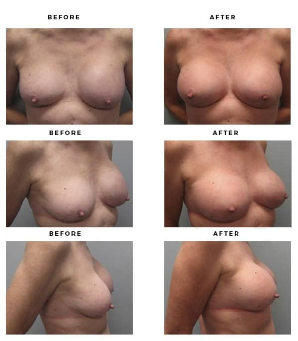 Before & After Pics- Remove and Replace Implants - Dr. Della Bennett, MD. of Gemini Plastic Surgery - Top Board Certified Plastic Surgeon in Serving Surrounding Southern California. Study #2244