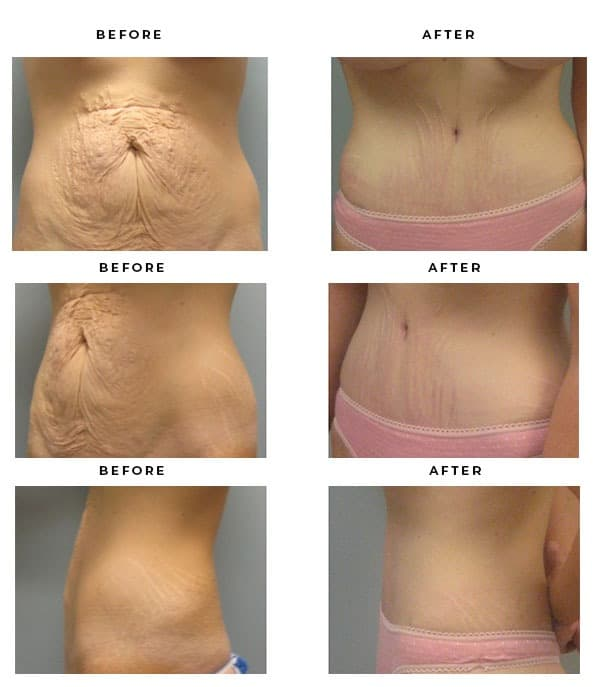 Before & After Pics- Abdominoplasty - Dr. Della Bennett, MD. of Gemini Plastic Surgery in Riverside County. Top Board Certified Plastic Surgeon in Southern California. Case Study #2812