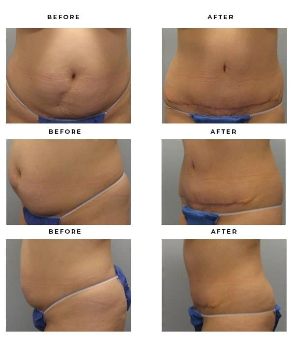 Before & After Images- Best Tummy Tuck - Dr. Della Bennett, MD. of Gemini Plastic Surgery in Los Angeles, Orange County, Inland Empire, Ca. Top Board Certified Plastic Surgeon in Southern California. Case Study #2821