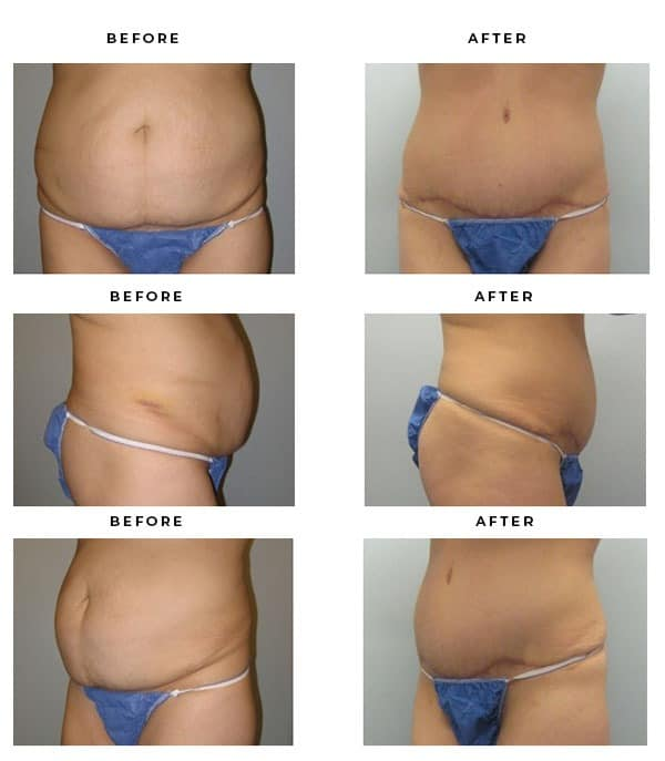 Before & After Images- Abdominoplasty Photos. Los Angeles - Dr. Della Bennett, MD. of Gemini Plastic Surgery in Rancho Cucamonga. Best Board Certified Plastic Surgeon near me. Case Study #2829
