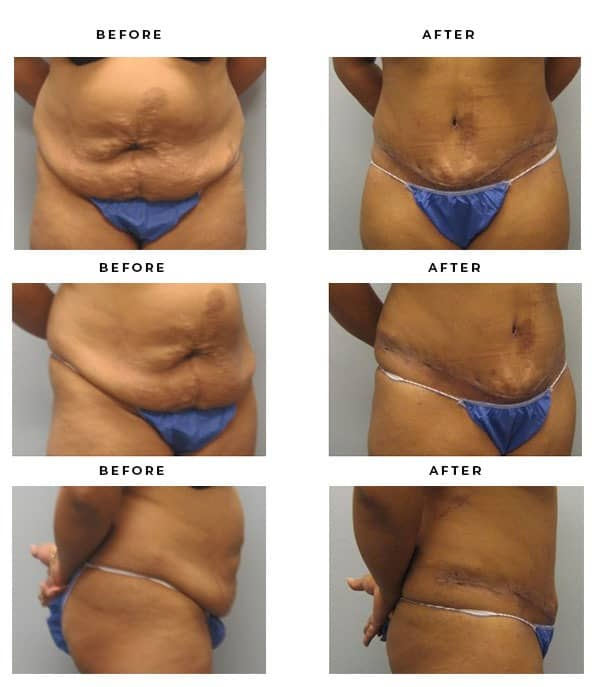Before & After Images- Abdominoplasty - Dr. Della Bennett, MD. of Gemini Plastic Surgery in Rancho Cucamonga. Best Board Certified Plastic Surgeon near me. Case Study #2845