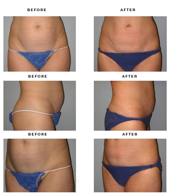 Before & After Images - What is abdominoplasty - Dr. Della Bennett, MD. of Gemini Plastic Surgery - Los Angeles, Orange County, Inland Empire, Riverside County - Case Study #2861