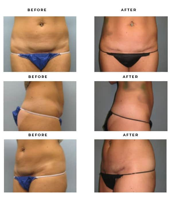 Before & After Images - Abdominoplasty- Liposuction - Dr. Della Bennett, MD. of Gemini Plastic Surgery - Top Board Certified Plastic Surgeon in Southern California. - Case Study #4080