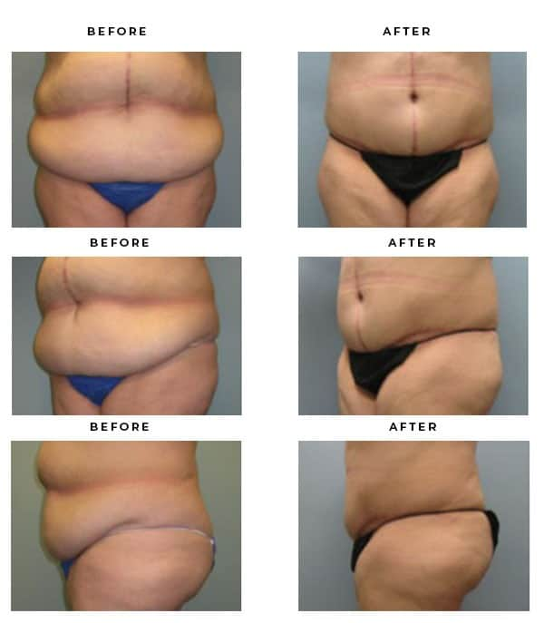 Before & After Gallery- Abdominoplasty - Dr. Della Bennett, MD. of Gemini Plastic Surgery - Best Female Board Certified Plastic Surgeon in Southern California. Dr. Della Bennett, MD. of Gemini Plastic Surgery - Top Board Certified Plastic Surgeon in Inland Empire & San Bernadino County. Case Study #4088