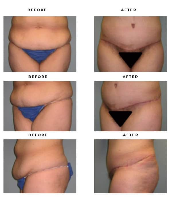 Before & After Images- Abdominoplasty - Dr. Della Bennett, MD. of Gemini Plastic Surgery - Top Female Board Certified Plastic Surgeon in Orange County, Los Angeles & Inland Empire Case Study #4096