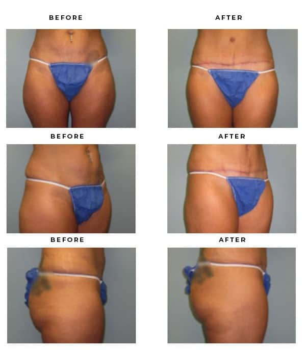 Before & After Pics- Liposuction - Chief of Plastic Surgery- Dr. Della Bennett, MD. of Gemini Plastic Surgery - Top Board Certified Plastic Surgeon. Rancho Cucamonga. Study #4104