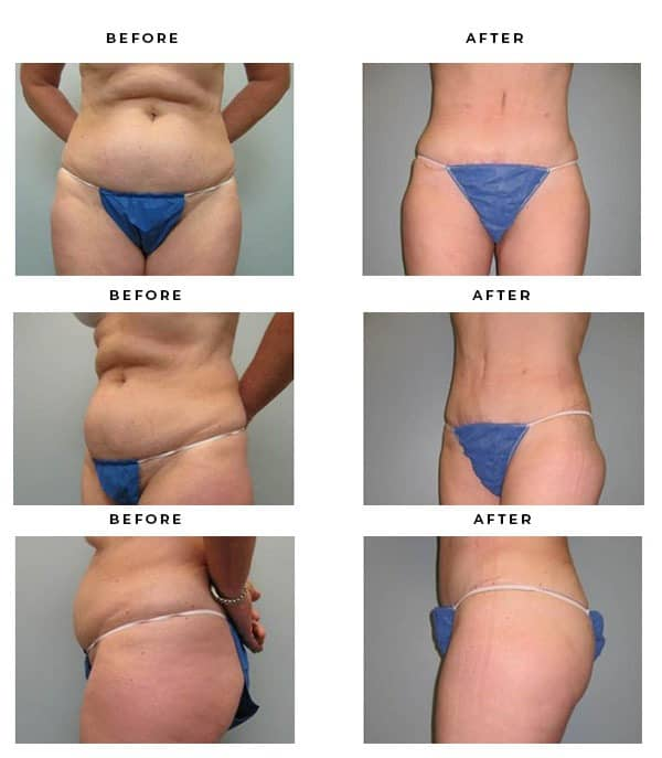 Before & After Pics- Tummy Tuck Specialist - Chief of Plastic Surgery- Dr. Della Bennett, MD. of Gemini Plastic Surgery - Best Board Certified Plastic Surgeon in Rancho Cucamonga. Study #4113